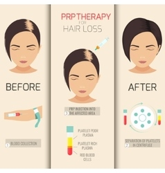 PRP therapy for hair loss vector image