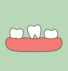 Loose tooth - tooth is fall out gum vector