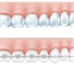 Human teeth with braces set vector