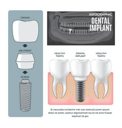 Infographic dental implant structure info poster vector