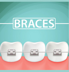 human teeth with metal braces stock cartoon vector image