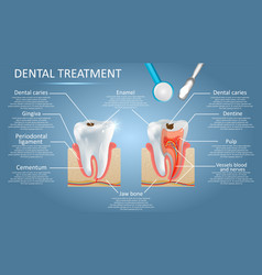 Dental treatment diagram education medical vector
