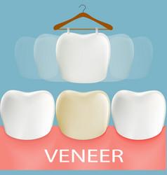 Dental veneers tooth anatomy vector