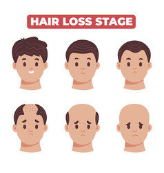 Flat-hand drawn hair loss stages collection vector