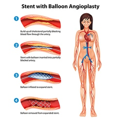 Stent angioplasty procedure vector