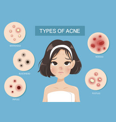 Types acne vector