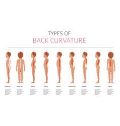 Types of back curvature medical desease vector
