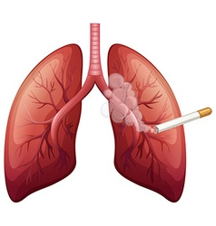 Lung cancer with smoke vector image vector image