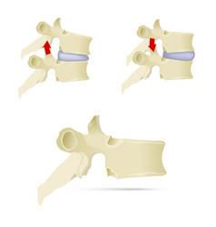 spine lumbar vertebra facet syndrome advanced vector image