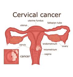 Cervical cancer vector
