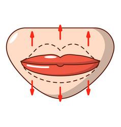 lip augmentation icon cartoon style vector image