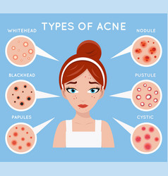 Face acne women skin cosmetic care pimple problem vector
