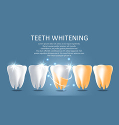 teeth whitening medical poster banner vector image