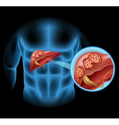 Liver Cancer diagram in detail vector image