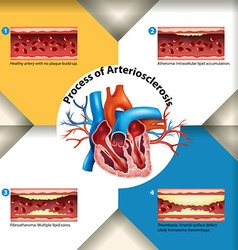 Process of Arteriosclerosis poster vector image