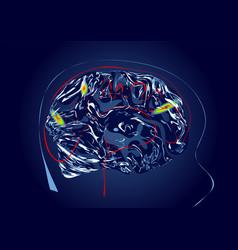 Brain scan vector