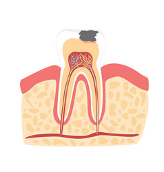 Cartoon tooth with stage of dental caries vector
