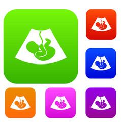 Ultrasound fetus set collection vector
