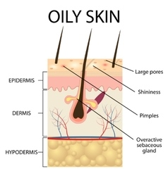 The layers of oily skin vector