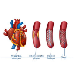Myocardial infarction 3d realostic stent in heart vector