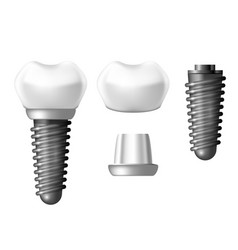 Component parts of dental implant - teeth denture vector