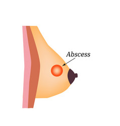 abscess world breast cancer day vector image