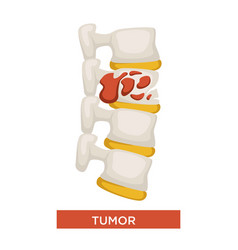 bone tumor skeleton disease or cancer medicine vector image