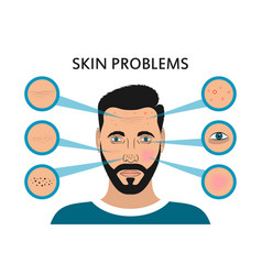 Male face skin problems vector