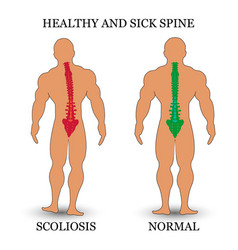 Healthy and diseased spine scoliosis and normal vector