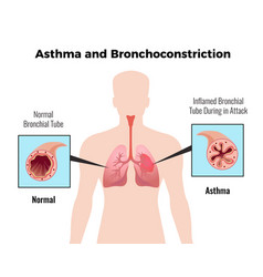 Asthma medical poster vector