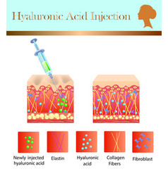 hyaluronic acid injection before and affect vector image