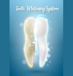 3d realistic tooth cleaning process teeth vector