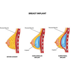 Cartoon of Plastic surgery of breast implant vector image