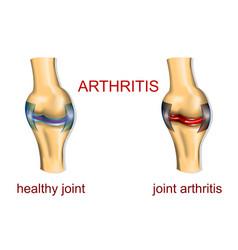 Joint arthritis vector