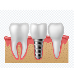 Tooth implant human teeth and dental implant vector