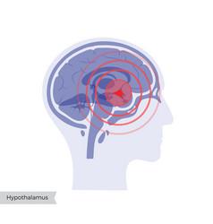 Pain brain vector