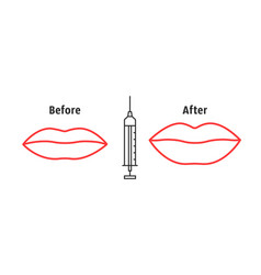 before and after lips filler injections vector image