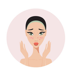 young beautiful woman with skin problems and acne vector image