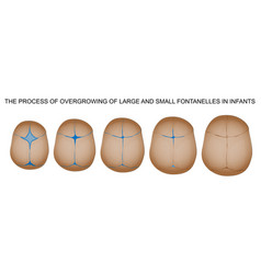 fontanelle in newborns vector image