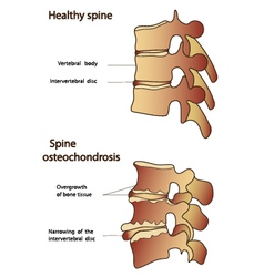 Healthy and sick spine vector image vector image