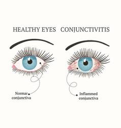 eye disease ophthalmology health vector image