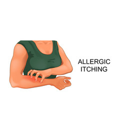Allergic skin itching vector