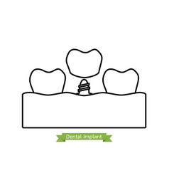 Dental implant - cartoon outline style vector