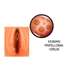 Human papilloma virus on female genitals vector