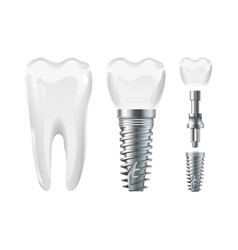 Dental surgery implant cut and healthy tooth vector