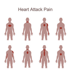 Heart attack pain location vector