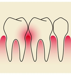 Periodontal disease vector