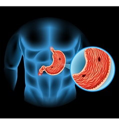 Stomach Ulcer diagram in human vector image vector image