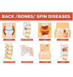 Back bones and human spin diseases explanation vector