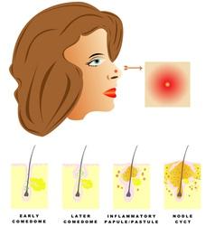 Acne vector